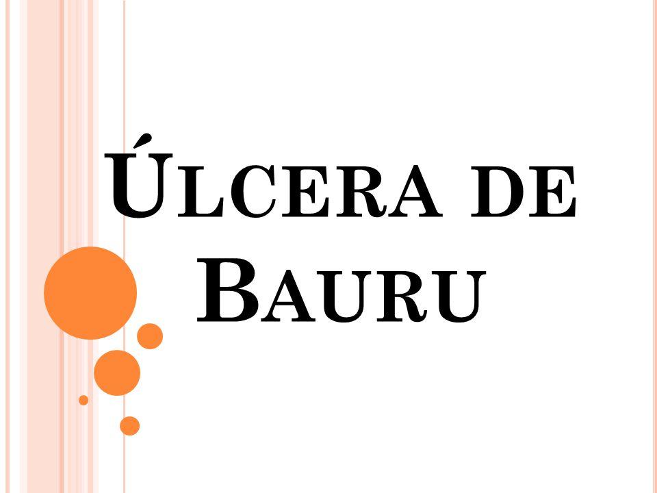Ú LCERA DE B AURU