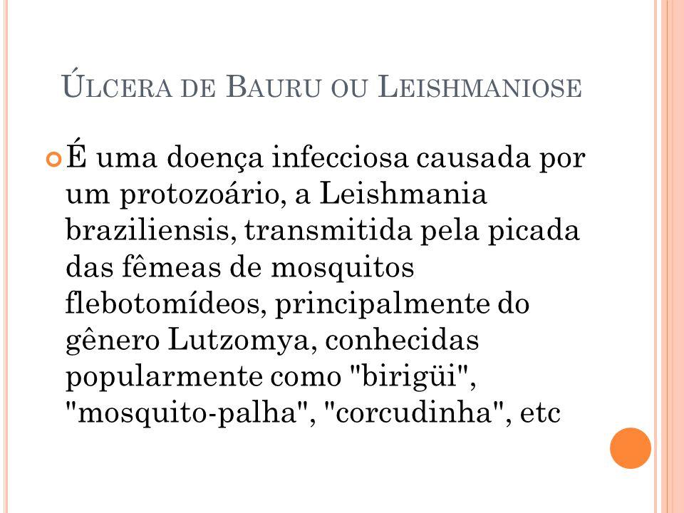 Ú LCERA DE B AURU OU L EISHMANIOSE É uma doença infecciosa causada por um protozoário, a Leishmania braziliensis, transmitida pela picada das fêmeas d