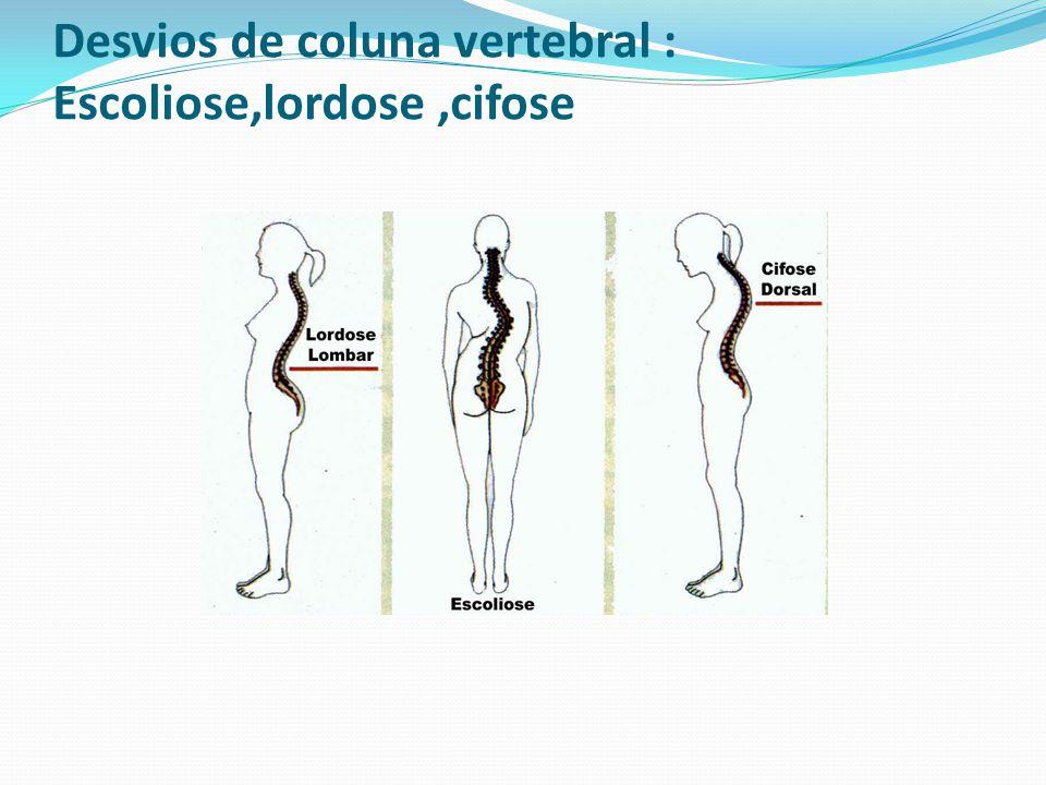 Desvios de coluna vertebral : Escoliose,lordose,cifose