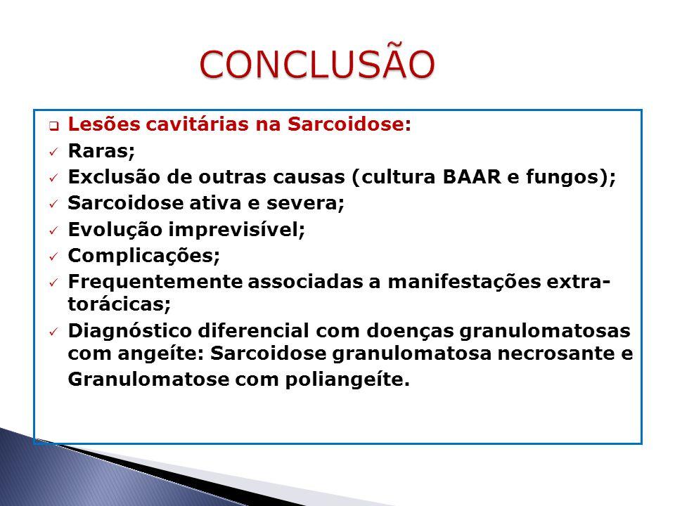  Lesões cavitárias na Sarcoidose: Raras; Exclusão de outras causas (cultura BAAR e fungos); Sarcoidose ativa e severa; Evolução imprevisível; Complic
