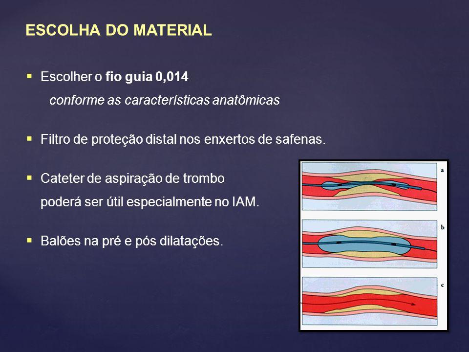 ESCOLHA DO MATERIAL  Escolher o fio guia 0,014 conforme as características anatômicas  Filtro de proteção distal nos enxertos de safenas.  Cateter
