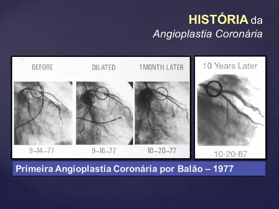 Primeira Angioplastia Coronária por Balão – 1977 HISTÓRIA da Angioplastia Coronária
