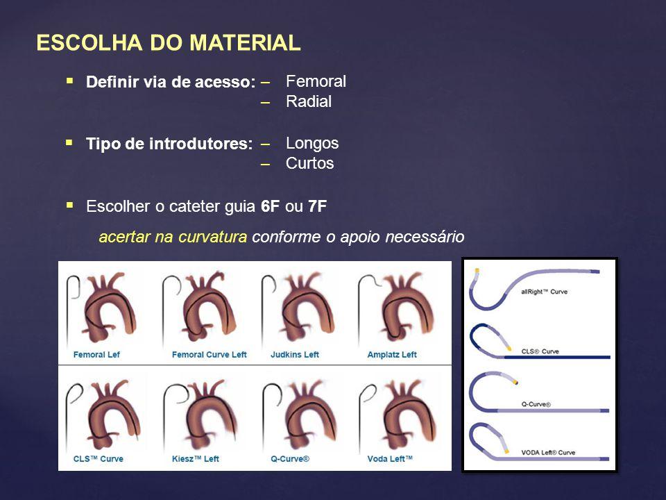 ESCOLHA DO MATERIAL  Definir via de acesso:  Escolher o cateter guia 6F ou 7F acertar na curvatura conforme o apoio necessário – Femoral – Radial  Tipo de introdutores: – Longos – Curtos