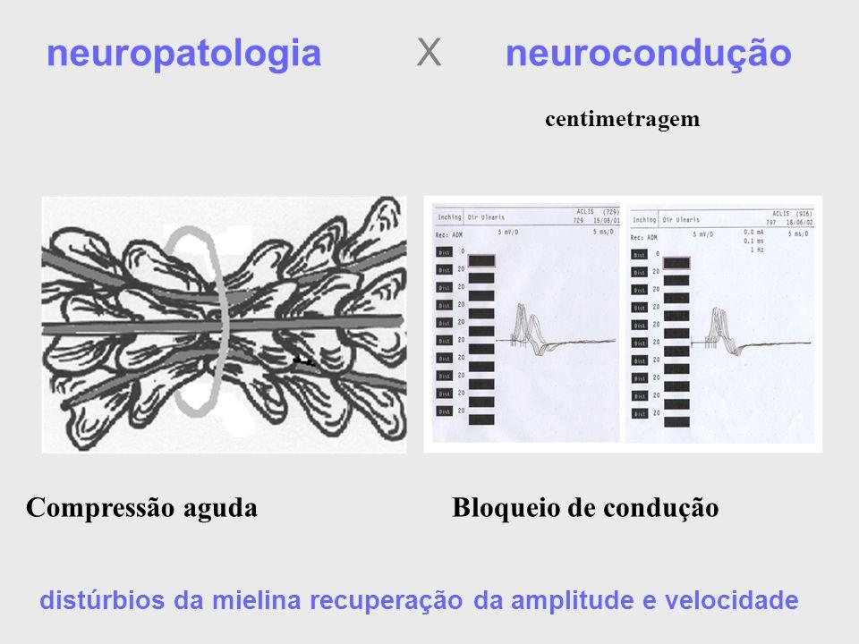 Bloqueio de conduçãoCompressão aguda distúrbios da mielina recuperação da amplitude e velocidade neuropatologia X neurocondução centimetragem