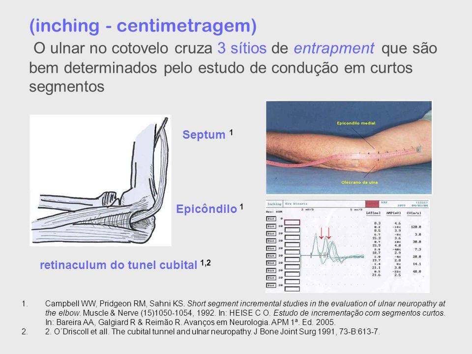(inching - centimetragem) O ulnar no cotovelo cruza 3 sítios de entrapment que são bem determinados pelo estudo de condução em curtos segmentos Septum