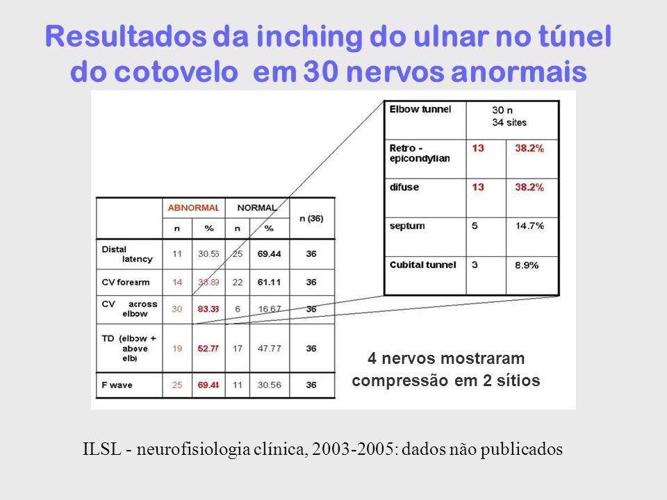 Resultados da inching do ulnar no túnel do cotovelo em 30 nervos anormais 4 nervos mostraram compressão em 2 sítios ILSL - neurofisiologia clínica, 20