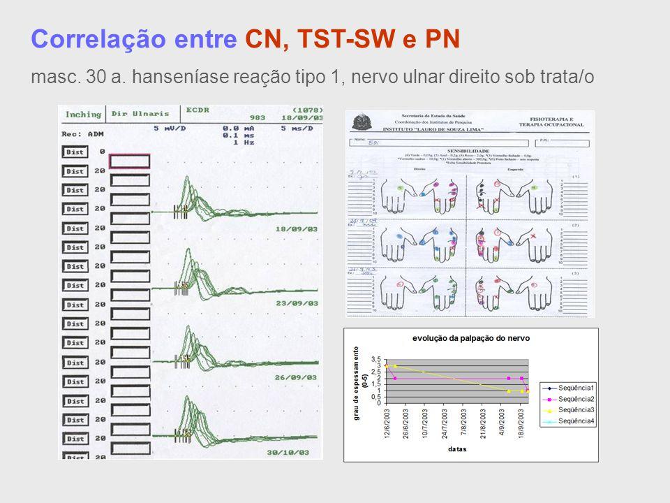 Correlação entre CN, TST-SW e PN masc. 30 a. hanseníase reação tipo 1, nervo ulnar direito sob trata/o