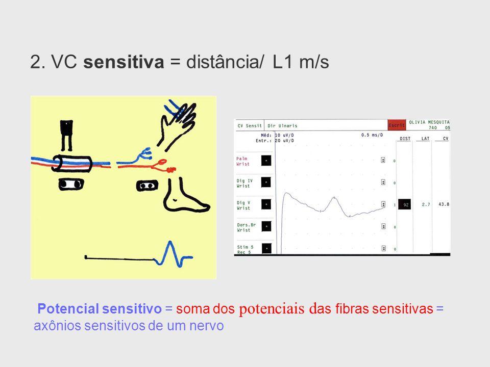 2. VC sensitiva = distância/ L1 m/s Potencial sensitivo = soma dos potenciais d as fibras sensitivas = axônios sensitivos de um nervo