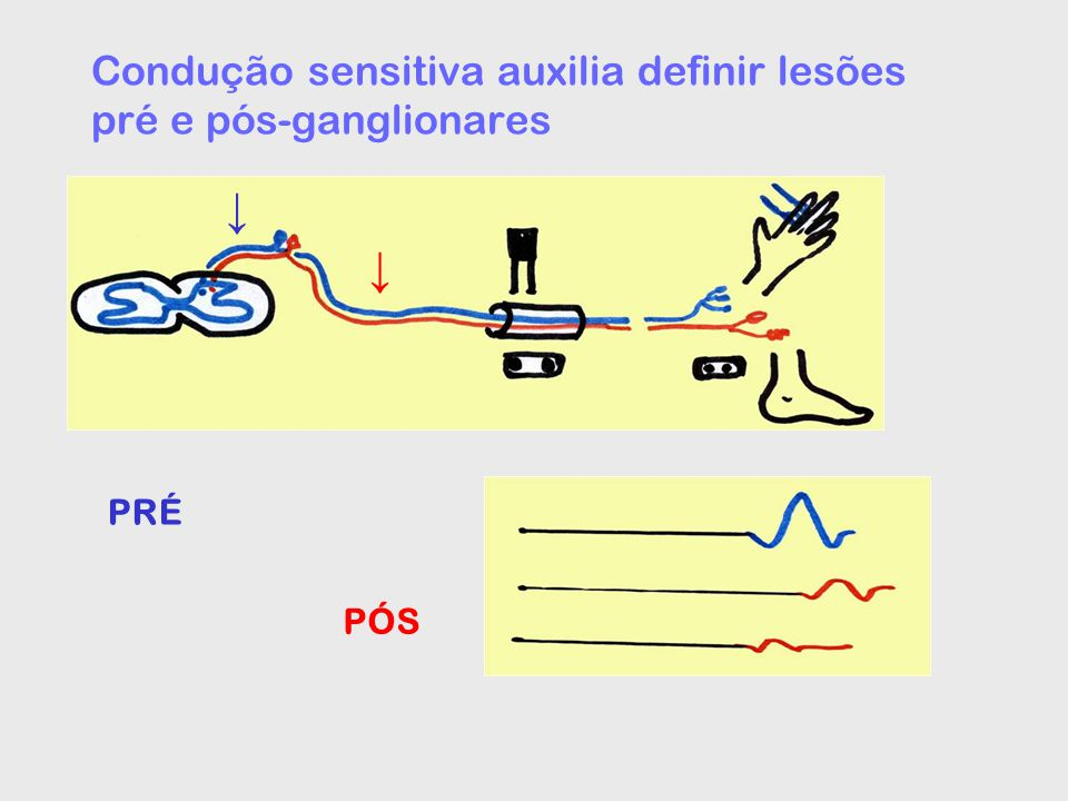 Radiculopatia cervical / dupla compressão (double crush) Radiculopatias C6, C7, C8 –stc (C6, C7 - sensitivo, c8 - motor) –Túnel do cotovelo (C8) Desfiladeiro tóraco-cervical – mediano motor e ulnar sensitivo (nervos ulnar > mediano ou só ulnar) – verdadeiro: meninas adolescentes > adultas jovens