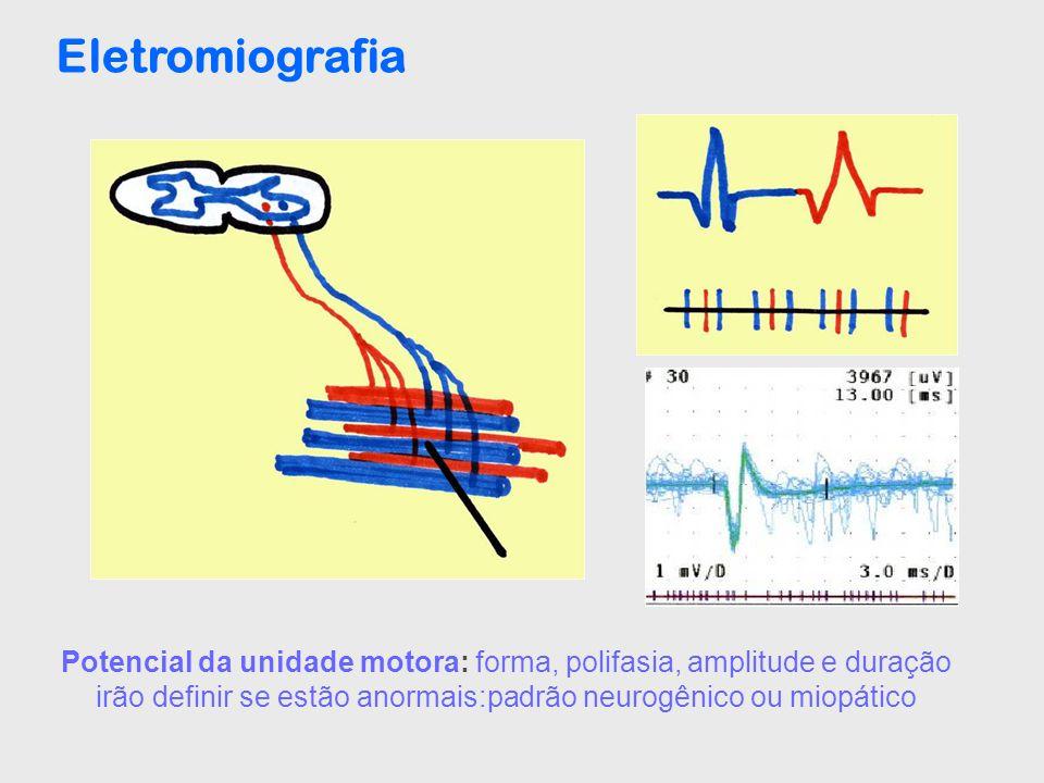 Eletromiografia Potencial da unidade motora: forma, polifasia, amplitude e duração irão definir se estão anormais:padrão neurogênico ou miopático