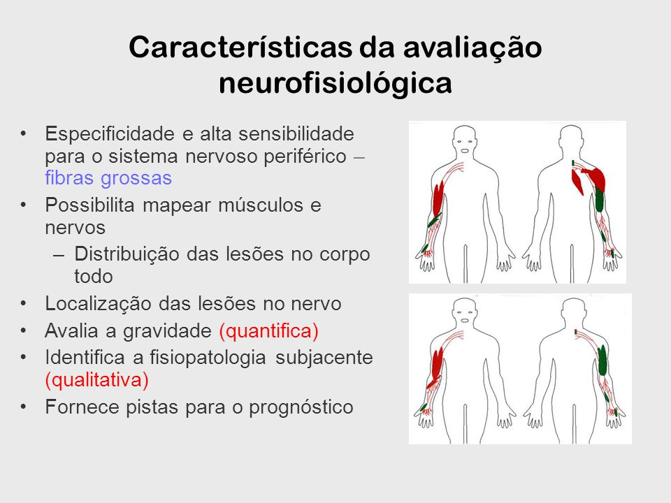 Especificidade e alta sensibilidade para o sistema nervoso periférico – fibras grossas Possibilita mapear músculos e nervos –Distribuição das lesões no corpo todo Localização das lesões no nervo Avalia a gravidade (quantifica) Identifica a fisiopatologia subjacente (qualitativa) Fornece pistas para o prognóstico Características da avaliação neurofisiológica
