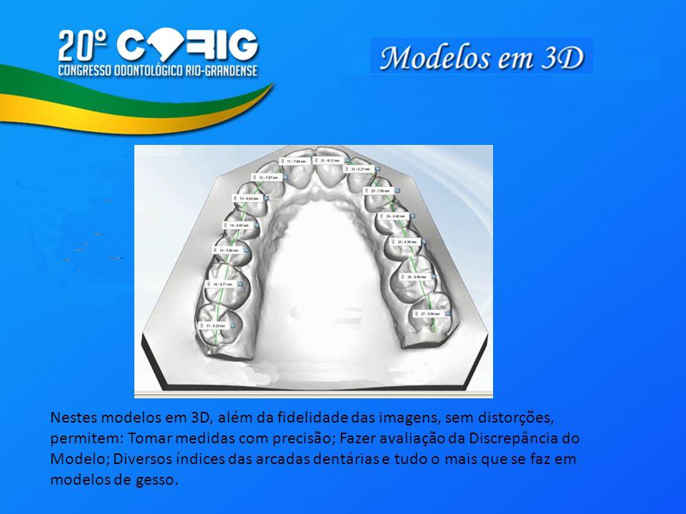 Nestes modelos em 3D, além da fidelidade das imagens, sem distorções, permitem: Tomar medidas com precisão; Fazer avaliação da Discrepância do Modelo; Diversos índices das arcadas dentárias e tudo o mais que se faz em modelos de gesso.