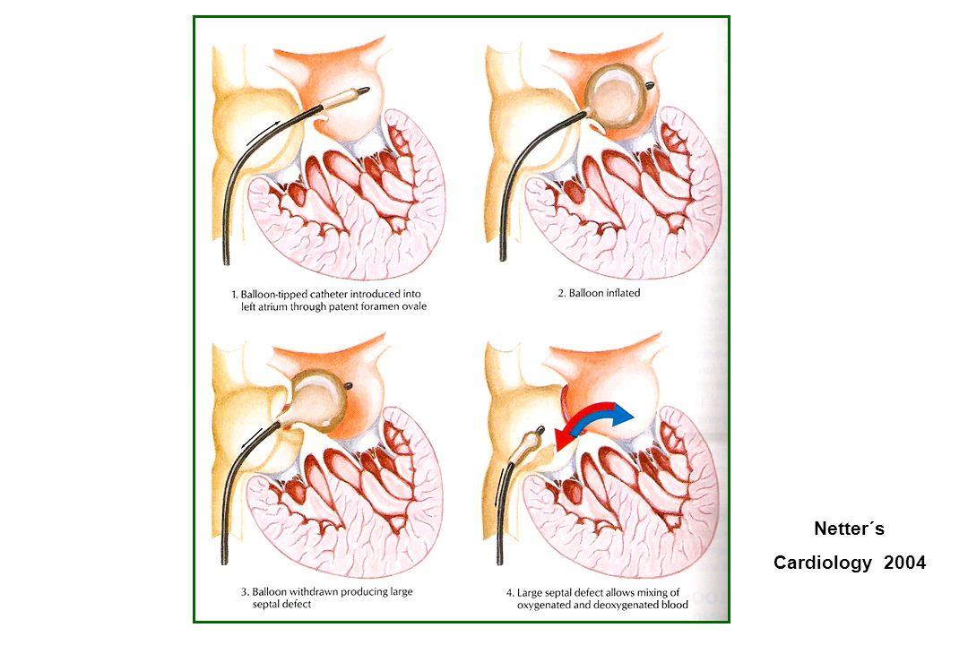 Netter´s Cardiology 2004