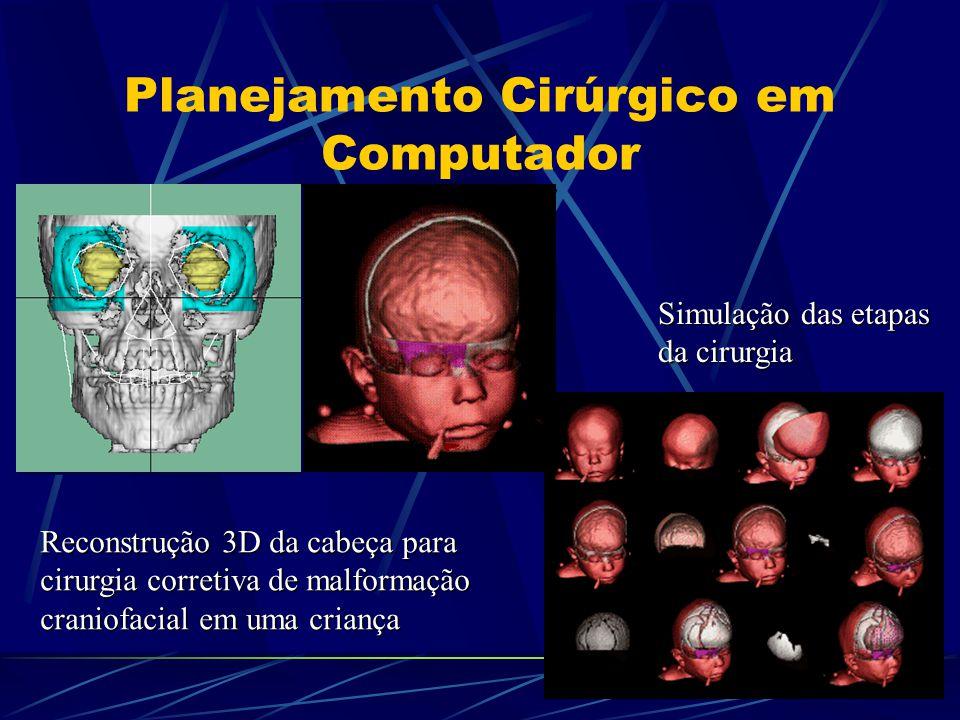 Planejamento Cirúrgico em Computador Reconstrução 3D da cabeça para cirurgia corretiva de malformação craniofacial em uma criança Simulação das etapas da cirurgia
