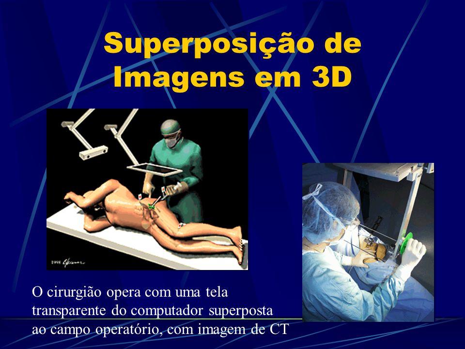 Superposição de Imagens em 3D O cirurgião opera com uma tela transparente do computador superposta ao campo operatório, com imagem de CT