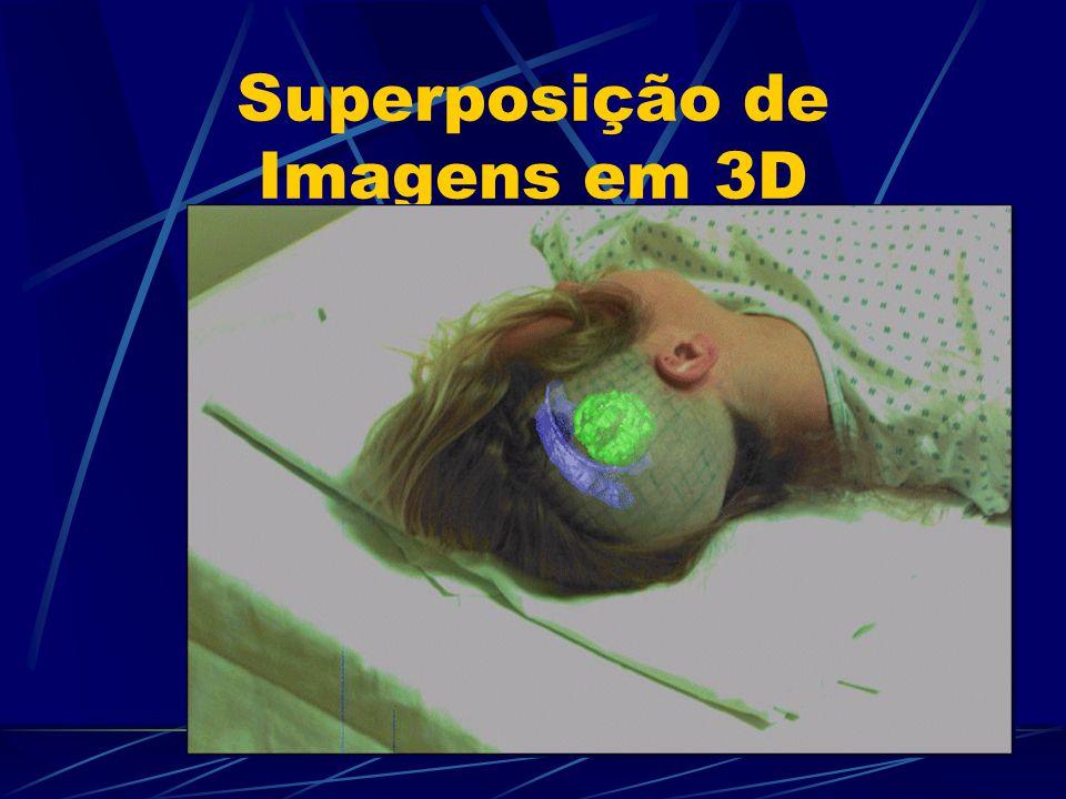 Superposição de Imagens em 3D