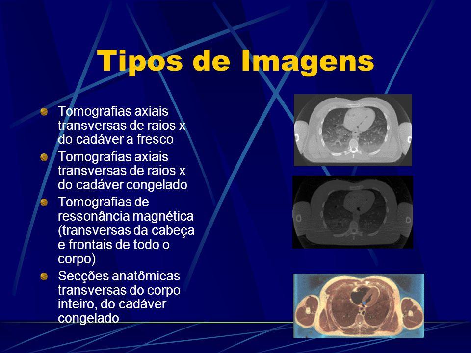 Tipos de Imagens Tomografias axiais transversas de raios x do cadáver a fresco Tomografias axiais transversas de raios x do cadáver congelado Tomograf