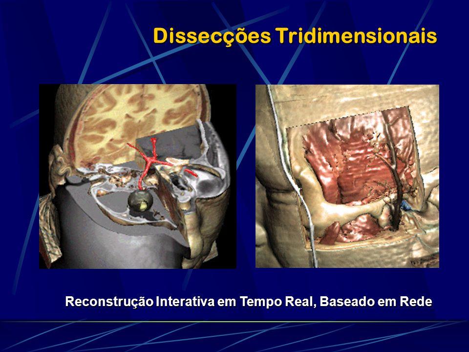 Dissecções Tridimensionais Reconstrução Interativa em Tempo Real, Baseado em Rede