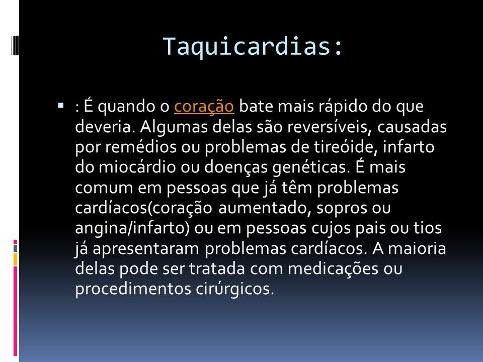 Taquicardias:  : É quando o coração bate mais rápido do que deveria. Algumas delas são reversíveis, causadas por remédios ou problemas de tireóide, i