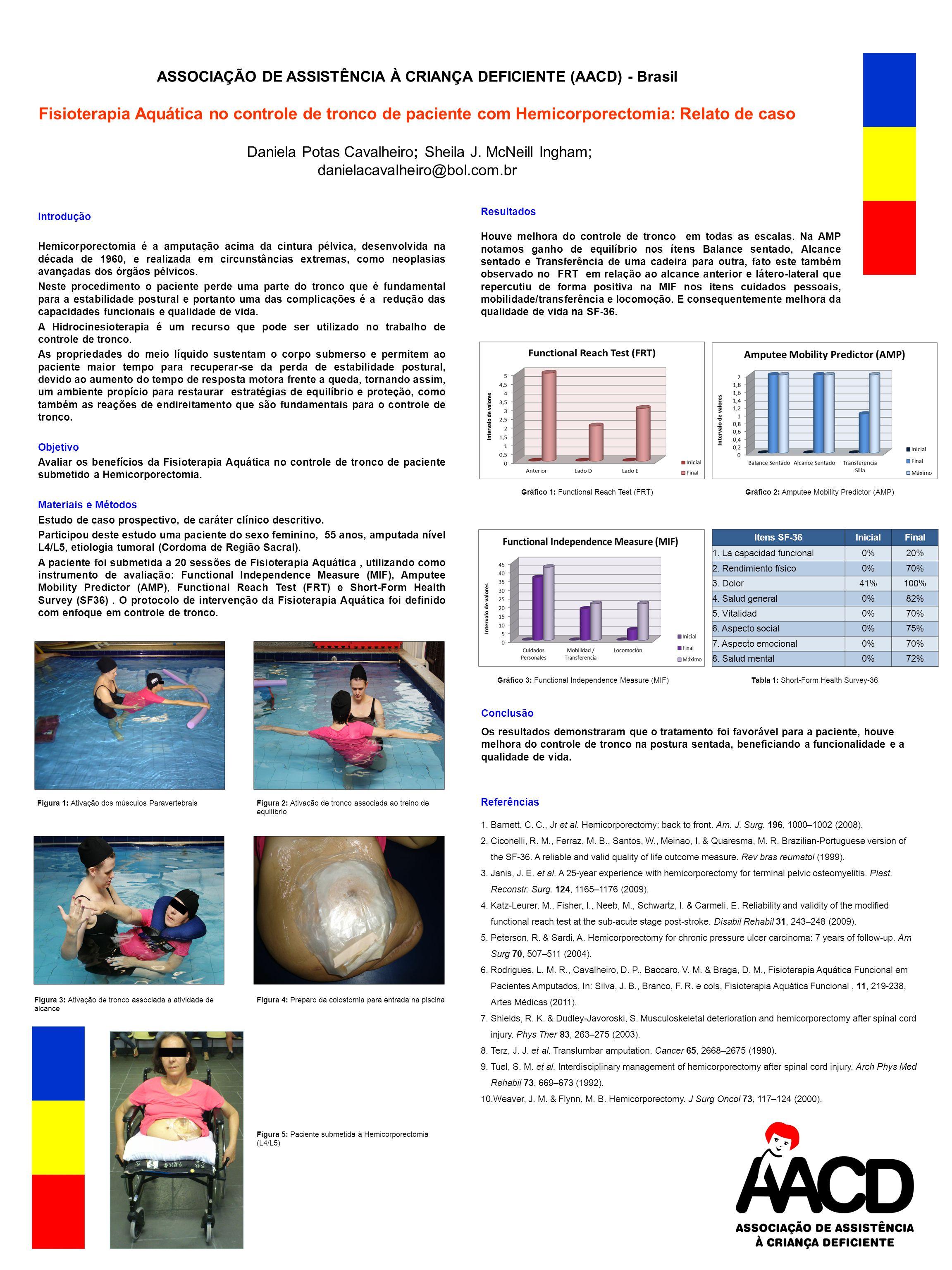 ASSOCIAÇÃO DE ASSISTÊNCIA À CRIANÇA DEFICIENTE (AACD) - Brasil Fisioterapia Aquática no controle de tronco de paciente com Hemicorporectomia: Relato de caso Daniela Potas Cavalheiro; Sheila J.