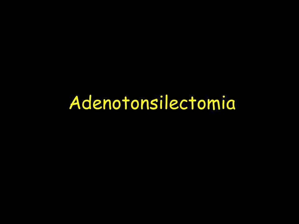Adenotonsilectomia