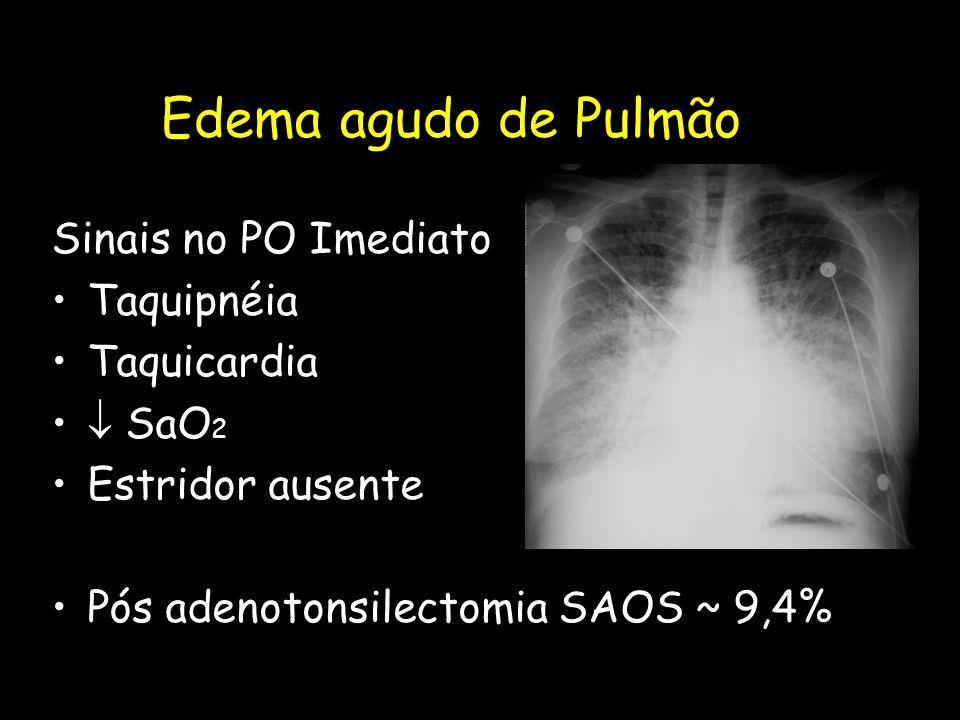 Edema agudo de Pulmão Sinais no PO Imediato Taquipnéia Taquicardia  SaO 2 Estridor ausente Pós adenotonsilectomia SAOS ~ 9,4%