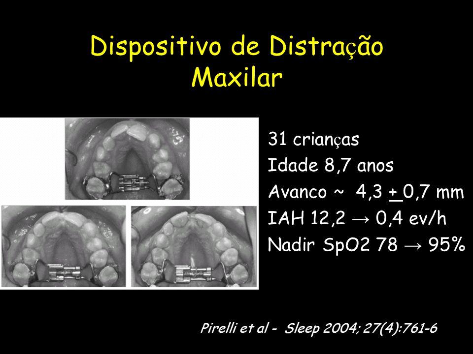 Dispositivo de Distra ç ão Maxilar 31 crian ç as Idade 8,7 anos Avanco ~ 4,3 + 0,7 mm IAH 12,2 → 0,4 ev/h Nadir SpO2 78 → 95% Pirelli et al - Sleep 20