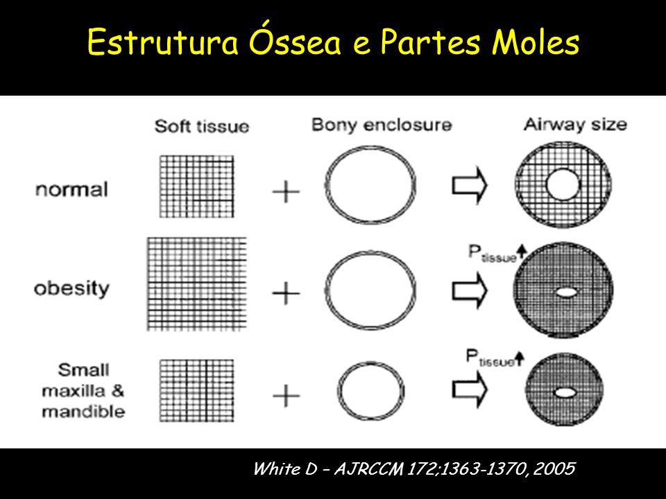 Estrutura Óssea e Partes Moles White D – AJRCCM 172;1363-1370, 2005