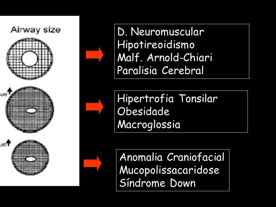 Anomalia Craniofacial Mucopolissacaridose Síndrome Down Hipertrofia Tonsilar Obesidade Macroglossia D. Neuromuscular Hipotireoidismo Malf. Arnold-Chia