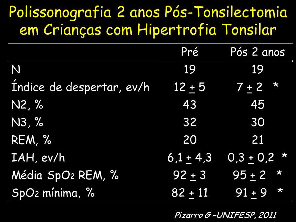 Polissonografia 2 anos Pós-Tonsilectomia em Crianças com Hipertrofia Tonsilar PréPós 2 anos N19 Índice de despertar, ev/h12 + 57 + 2 * N2, %4345 N3, %3230 REM, %2021 IAH, ev/h6,1 + 4,30,3 + 0,2 * Média SpO 2 REM, %92 + 395 + 2 * SpO 2 mínima, %82 + 11 91 + 9 * Pizarro G –UNIFESP, 2011