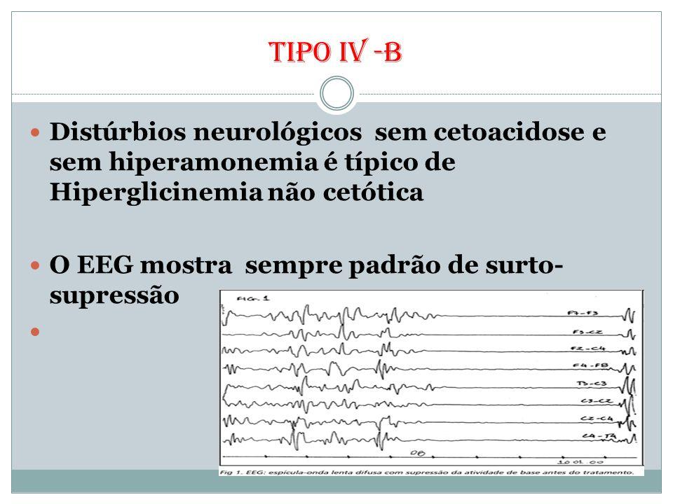 Tipo iv -b Distúrbios neurológicos sem cetoacidose e sem hiperamonemia é típico de Hiperglicinemia não cetótica O EEG mostra sempre padrão de surto- s