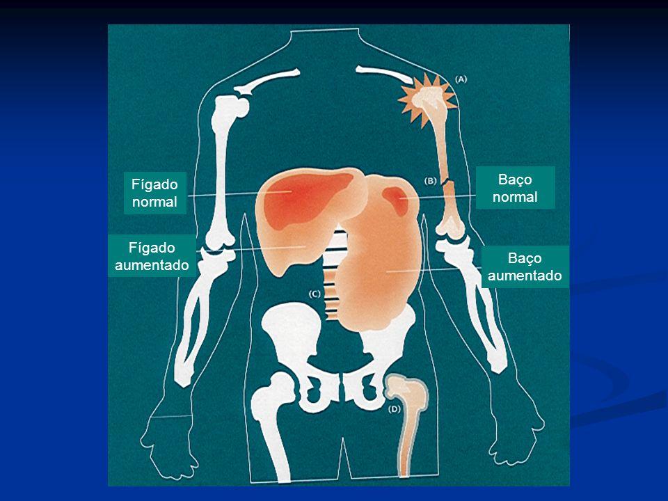 Fígado normal Fígado aumentado Baço normal Baço aumentado