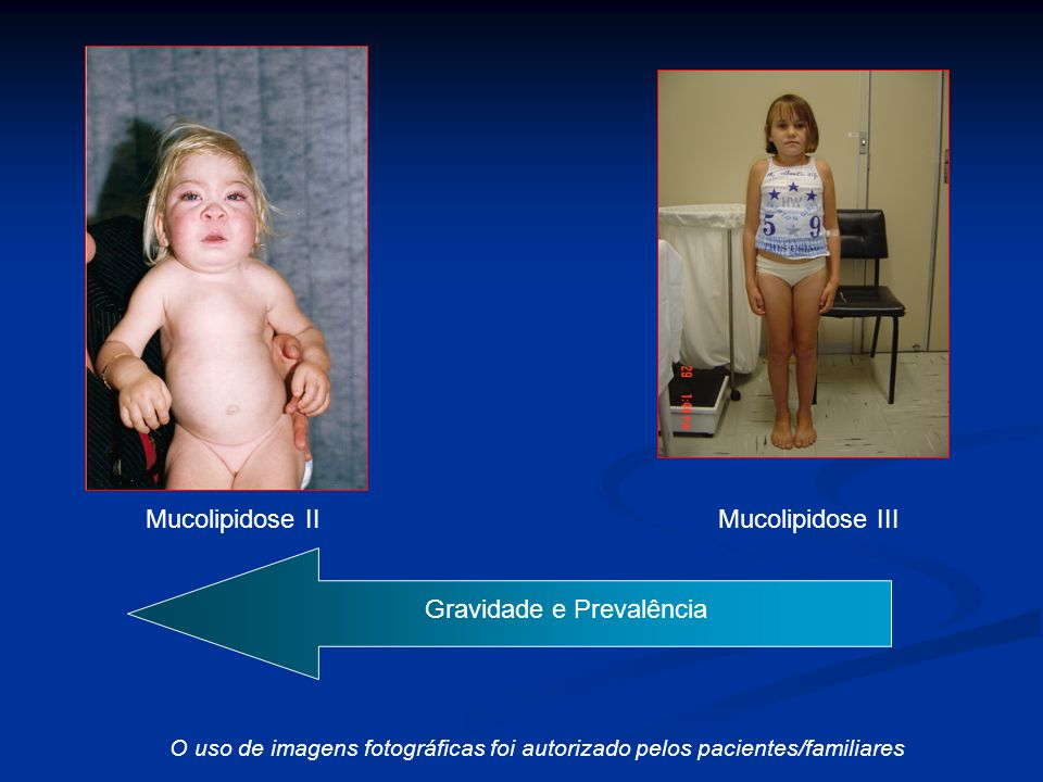 O uso de imagens fotográficas foi autorizado pelos pacientes/familiares. Mucolipidose II Mucolipidose III C) + - Gravidade e Prevalência