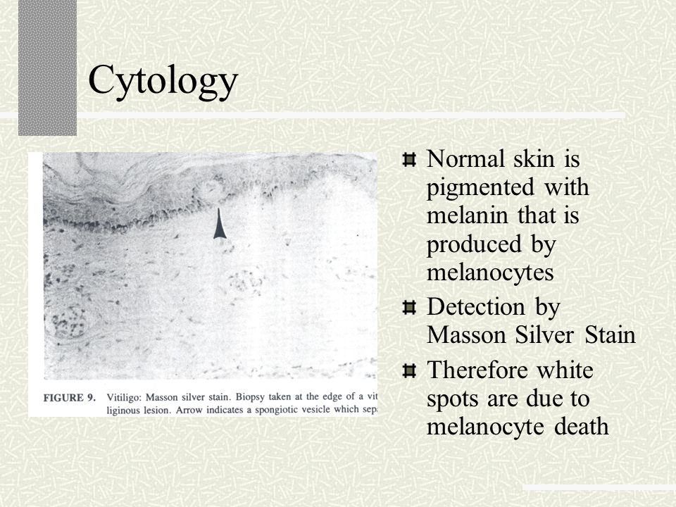 Cytology Normal skin is pigmented with melanin that is produced by melanocytes Detection by Masson Silver Stain Therefore white spots are due to melan