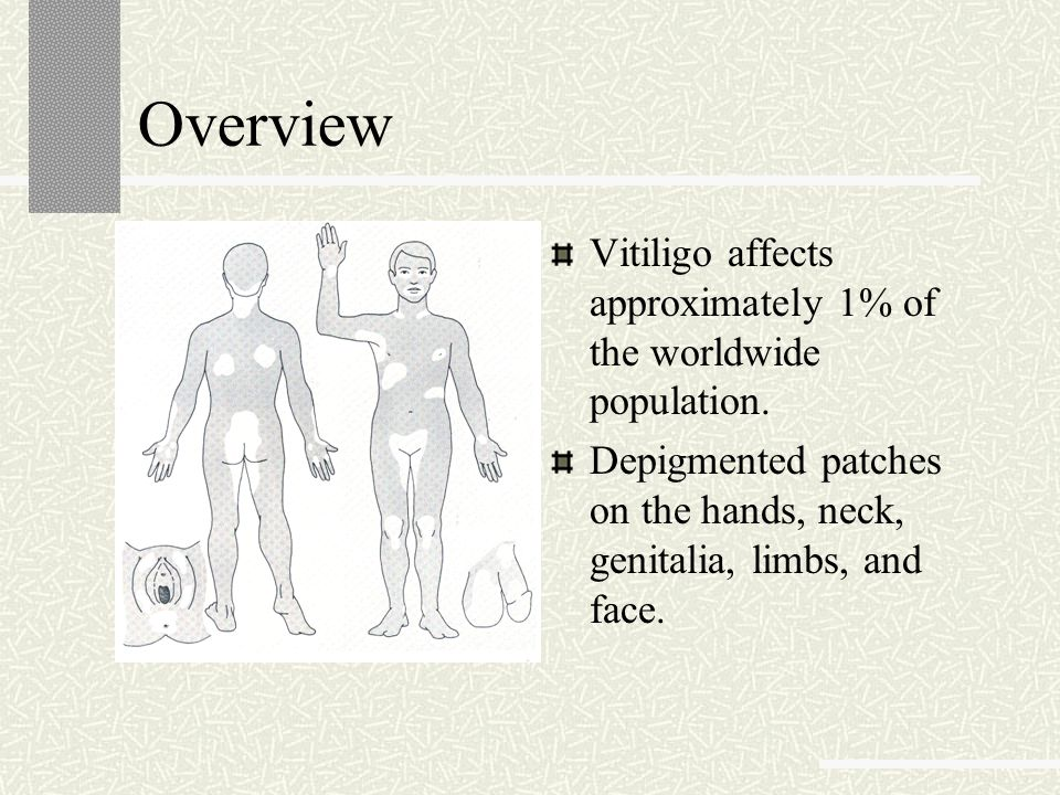 Overview Vitiligo affects approximately 1% of the worldwide population. Depigmented patches on the hands, neck, genitalia, limbs, and face.