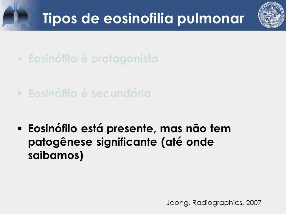 Causas diversas para eosinófilos pulmonares  Tabagistas  FPI  COP  HX  Vasculites  Colagenoses  Sarcoidose  Neoplasias Perez, MedClin N Am 2011 Campos.