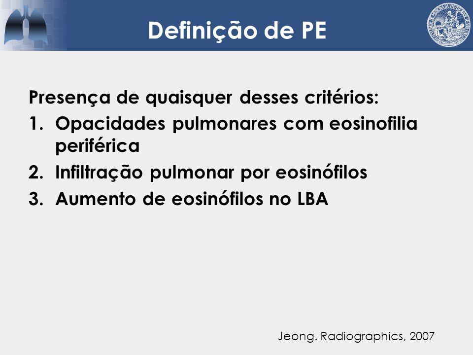 Definição de PE Presença de quaisquer desses critérios: 1.Opacidades pulmonares com eosinofilia periférica 2.Infiltração pulmonar por eosinófilos 3.Aumento de eosinófilos no LBA EOSINÓFILO PRECISA SER PATOGÊNICO Jeong.