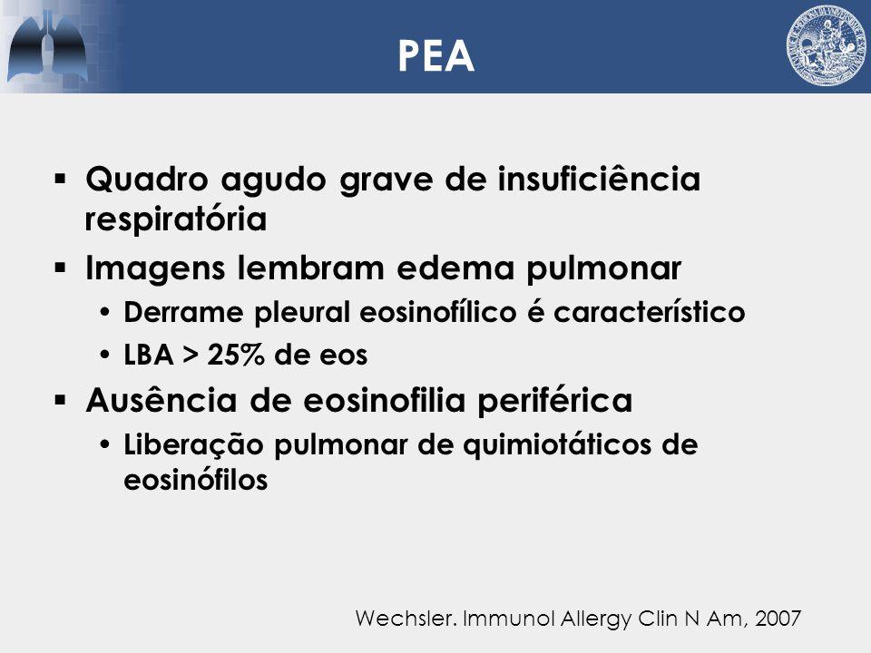 PEA  Sem relação com asma  Recorrência incomum  Fatores disparadores  Boa resposta a corticoterapia Sem recidiva após suspensão Wechsler.
