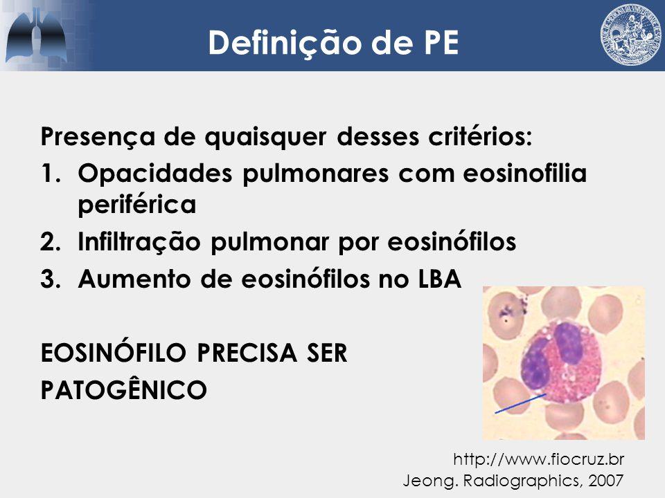 Tipos de eosinofilia pulmonar  Eosinófilo é protagonista Jeong. Radiographics, 2007