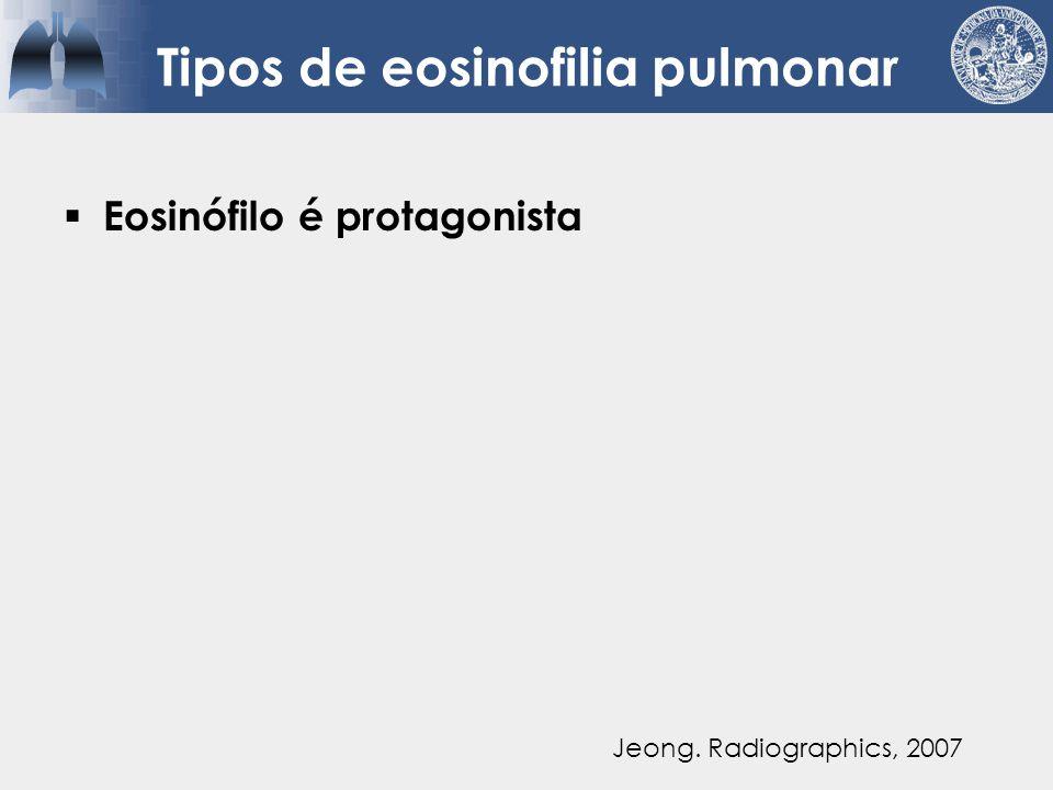 Tipos de eosinofilia pulmonar  Eosinófilo é protagonista  Eosinófilo é secundário Jeong.