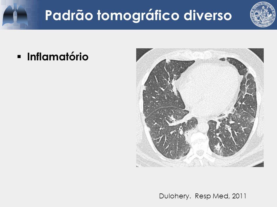  Inflamatório  Nodular Padrão tomográfico diverso Dulohery. Resp Med, 2011
