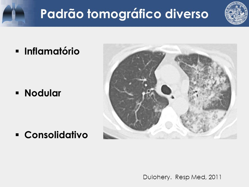 Tratamento  Corticóides  IFN-alfa  Hidroxiureia  Imatinib  Mepolizumab  QTs  TMO Dulohery.