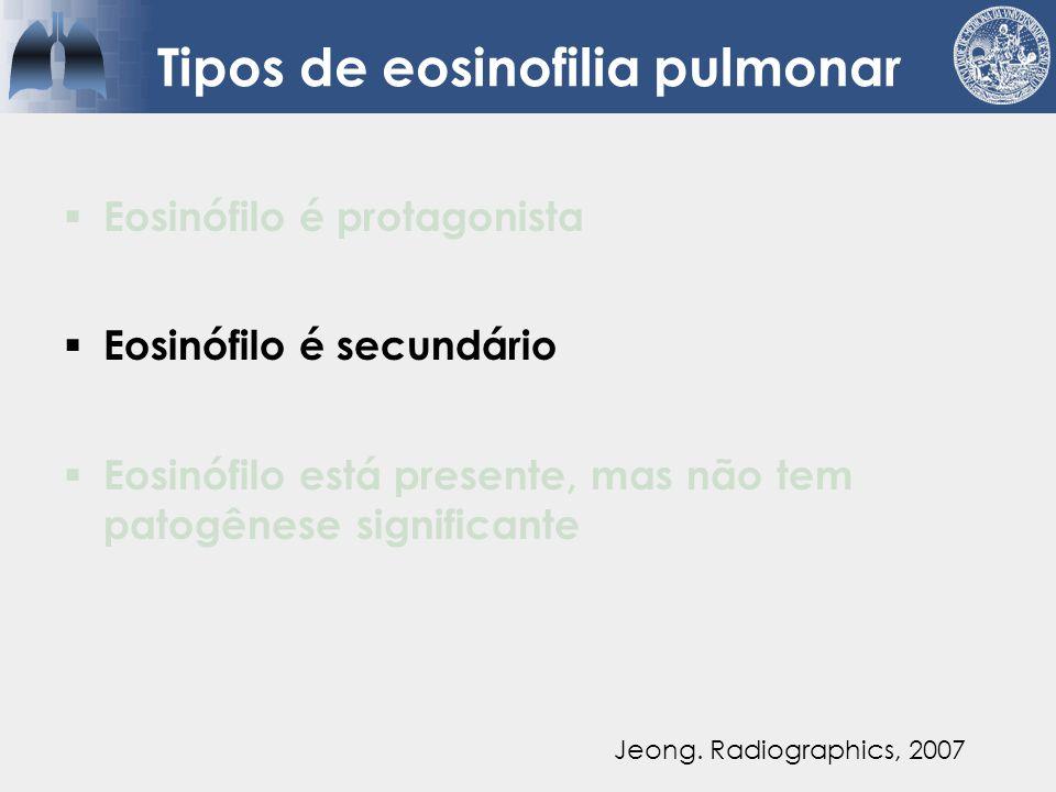 Causas para eosinofilia sistêmica e infiltrados pulmonares  Infecção PPC Coccidioidis Micobactérias Parasitoses  Neoplasias CPNPC Leucemia linfocítica  Drogas (www.pneumotox.com) Jeong.
