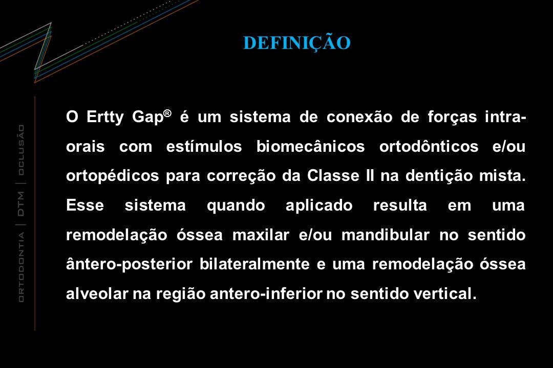 DEFINIÇÃO O Ertty Gap ® é um sistema de conexão de forças intra- orais com estímulos biomecânicos ortodônticos e/ou ortopédicos para correção da Class