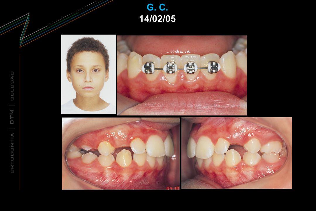 Combinação de fatores Combinação de fatores – Maxilar – Mandibular – Dentária – Direita – Esquerda – Maxilar – Mandibular – Dentária – Direita – Esquerda Esquelética – Mordida aberta – Sobremordida – Mordida aberta – Sobremordida – Maxilar – Mandibular – Dentária – Direita – Esquerda – Maxilar – Mandibular – Dentária – Direita – Esquerda – Sobremordida