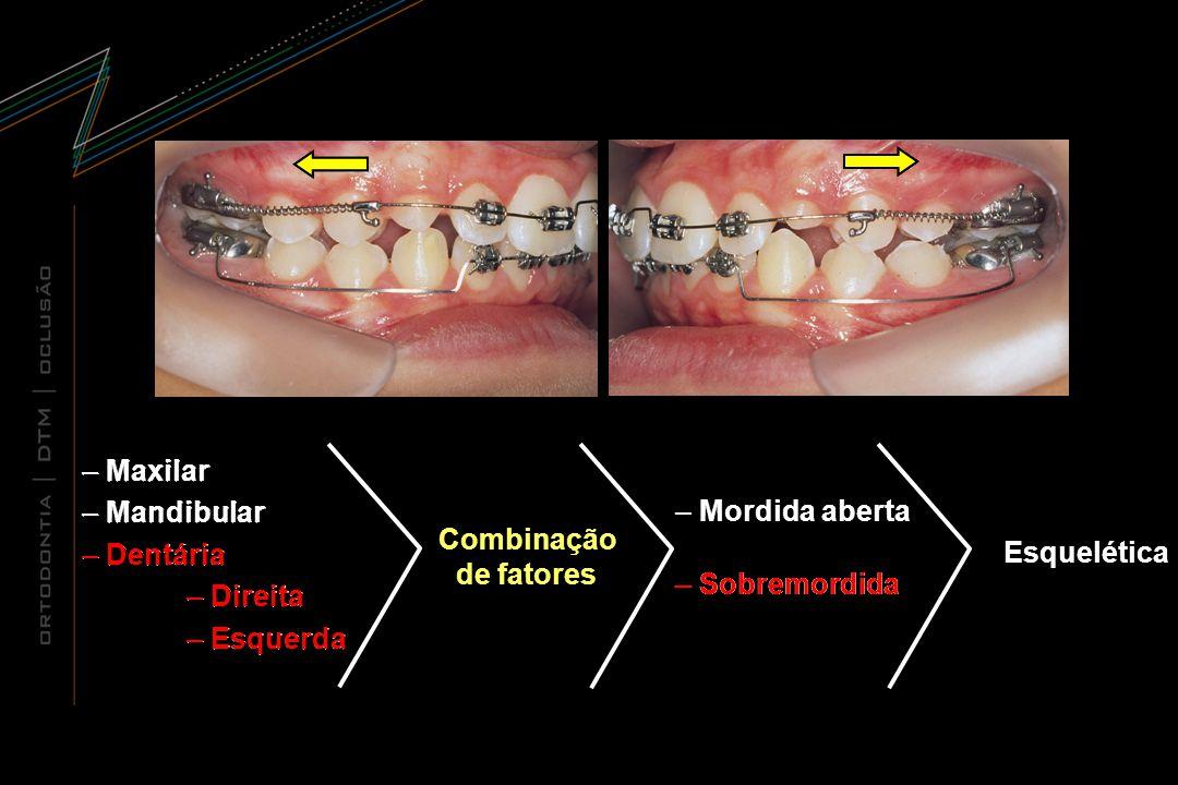 Combinação de fatores Combinação de fatores – Maxilar – Mandibular – Dentária – Direita – Esquerda – Maxilar – Mandibular – Dentária – Direita – Esque