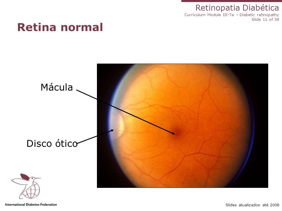 Retinopatia Diabética Curriculum Module III-7a – Diabetic retinopathy Slide 11 of 39 Slides atualizados até 2008 Retina normal Mácula Disco ótico