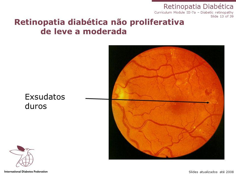 Retinopatia Diabética Curriculum Module III-7a – Diabetic retinopathy Slide 13 of 39 Slides atualizados até 2008 Retinopatia diabética não proliferati