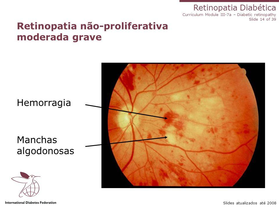 Retinopatia Diabética Curriculum Module III-7a – Diabetic retinopathy Slide 14 of 39 Slides atualizados até 2008 Retinopatia não-proliferativa moderad