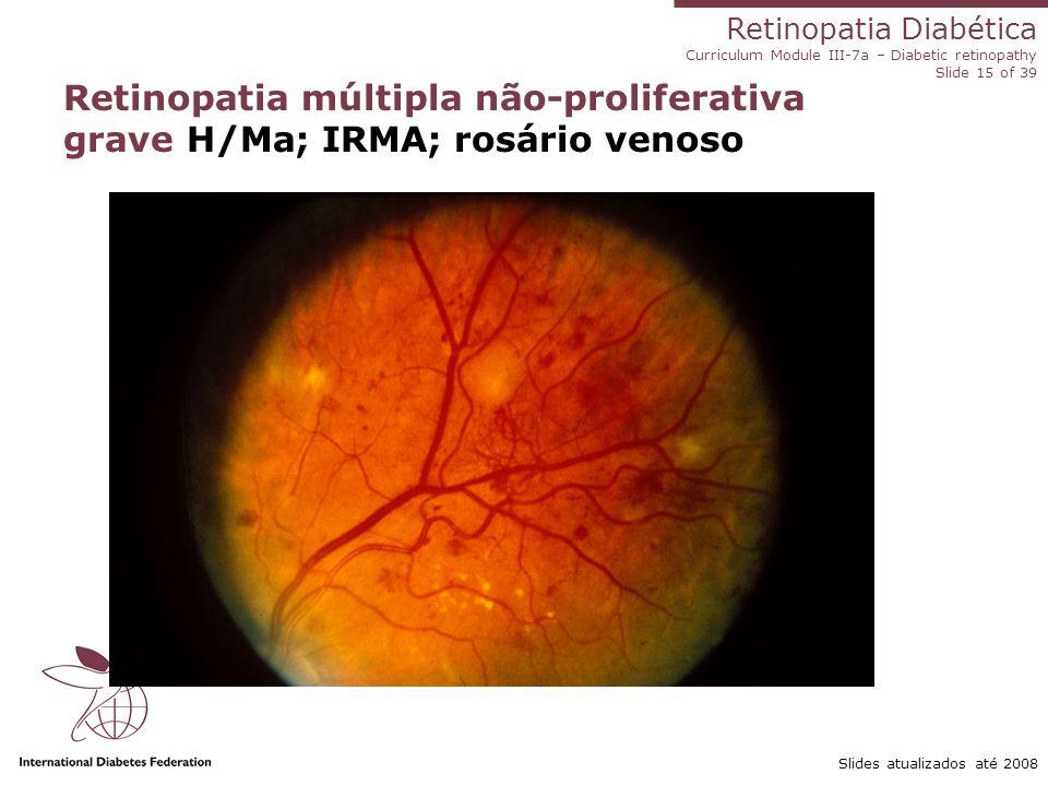 Retinopatia Diabética Curriculum Module III-7a – Diabetic retinopathy Slide 15 of 39 Slides atualizados até 2008 Retinopatia múltipla não-proliferativ